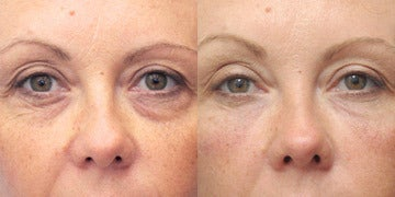 Eye Bags Treatment before and after photos