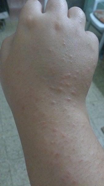 accutane rash