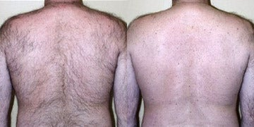 Laser Hair Removal before and after photos