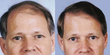 Hair Loss Treatment before and after photos