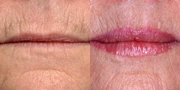 Lip Lift before and after photos