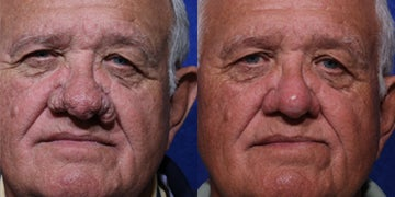 Facial Plastic Surgery before and after photos