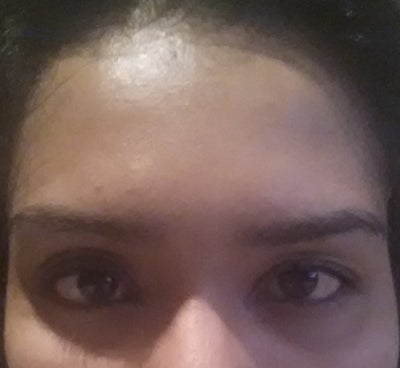 Which brow lift option is best