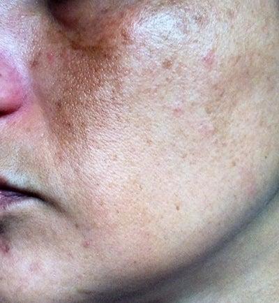 Facial Sun Spots 98