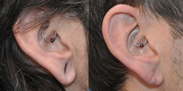 Ear Lobe Surgery before and after photos