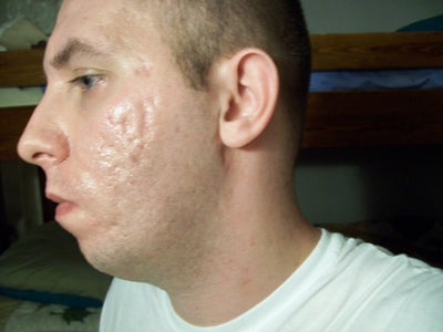 Treatment for severe acne scars? (photo) Doctor Answers, Tips