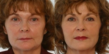 Lipodissolve before and after photos