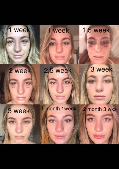 Revision Rhinoplasty Swelling Nightmare Turns Out Well Review
