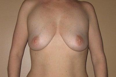 Breast augmentation crease the same