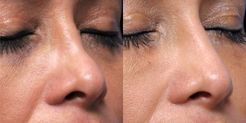 Non Surgical Nose Job before and after photos