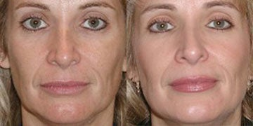 Microdermabrasion before and after photos
