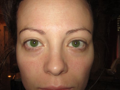 Help Deciding What to Do About Under Eye Aging...are They ...