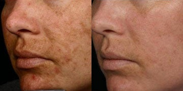 Melasma Treatment before and after photos