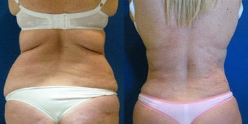 Laser Liposuction Before and After Photos