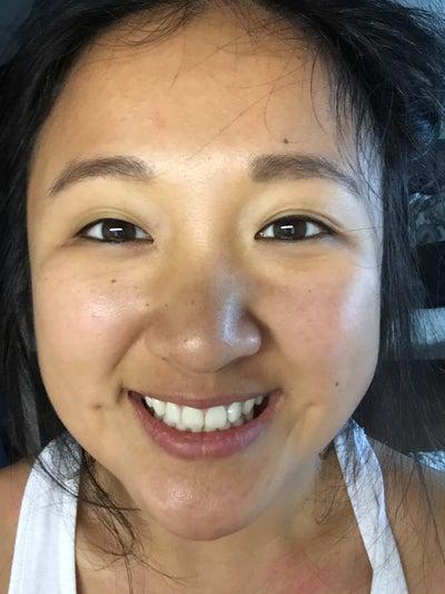 5 years post non-incisional double eyelid surgery and ... Bad Double Eyelid Surgery
