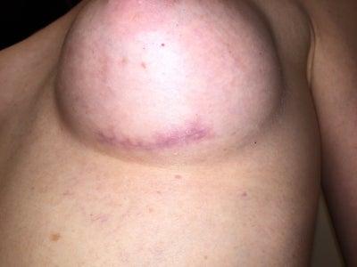 28 Y O Breast Implants 300cc Silicone Gel High Profile