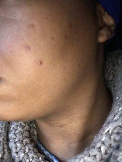 best adult acne treatment