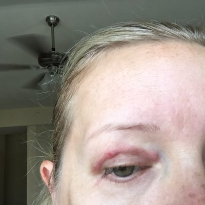 7 weeks post op lower and upper eyelid surgery, red bumps ...
