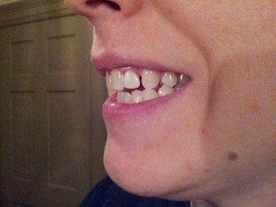 how to fix your gap without braces