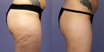 Cellulaze before and after photos
