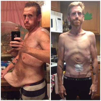 Zach Moore before and after surgery to remove excess skin