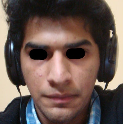 What changes can be made to my nose to make it look normal ...