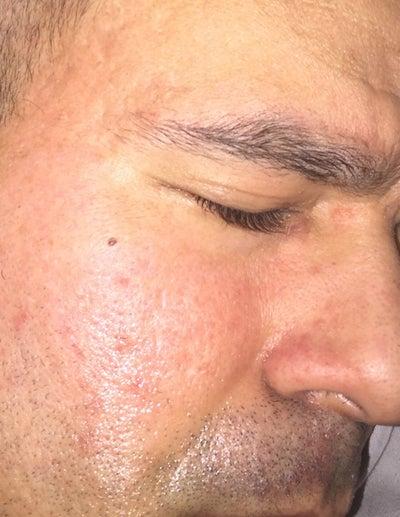 Treatment for facial redness