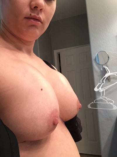 Odd Shaped Boobs Is This Normal Photo Doctor Answers, Tips-6928