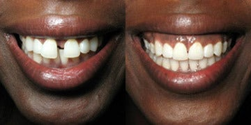 Invisalign before and after photos
