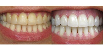 Zoom Whitening Worth It Reviews Cost Pictures Realself