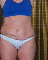 女の盲腸の傷跡  3針目YouTube動画>27本 ->画像>400枚
