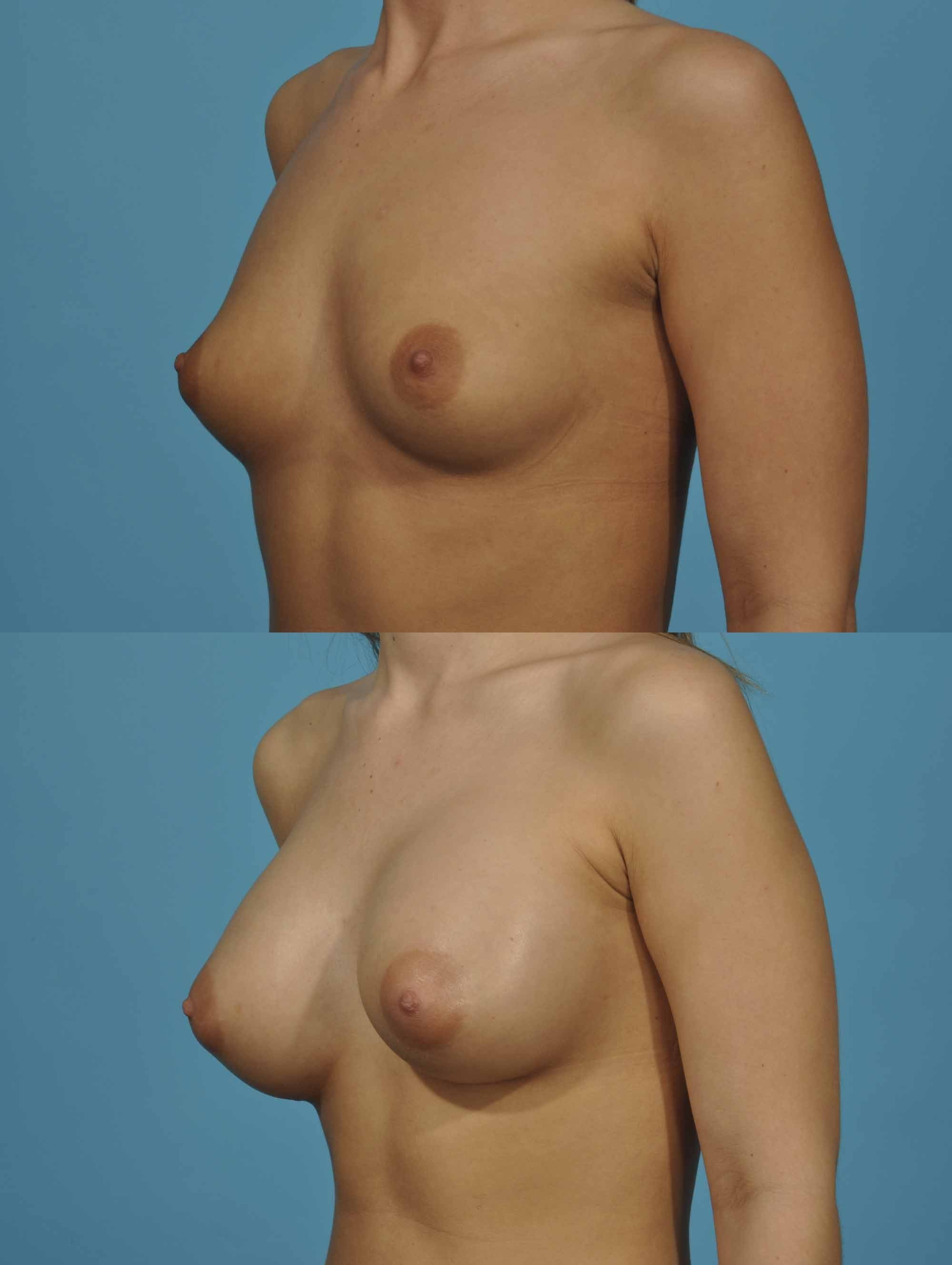 develop breast buds
