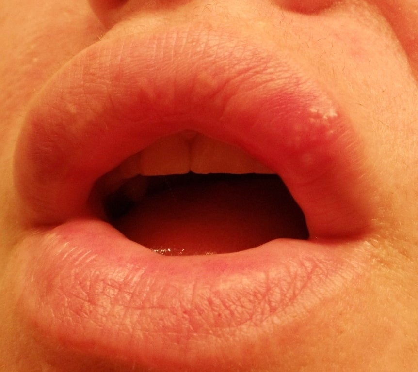White Bumps on Lips, Inside Lower Lip, Pictures, Small ...
