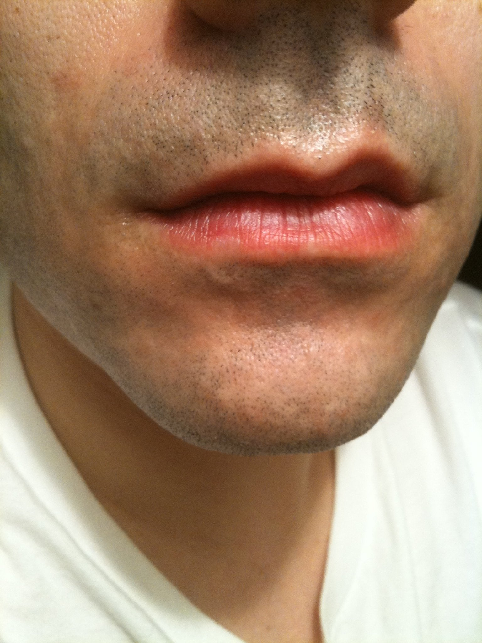 how to get herpes simplex cold sore
