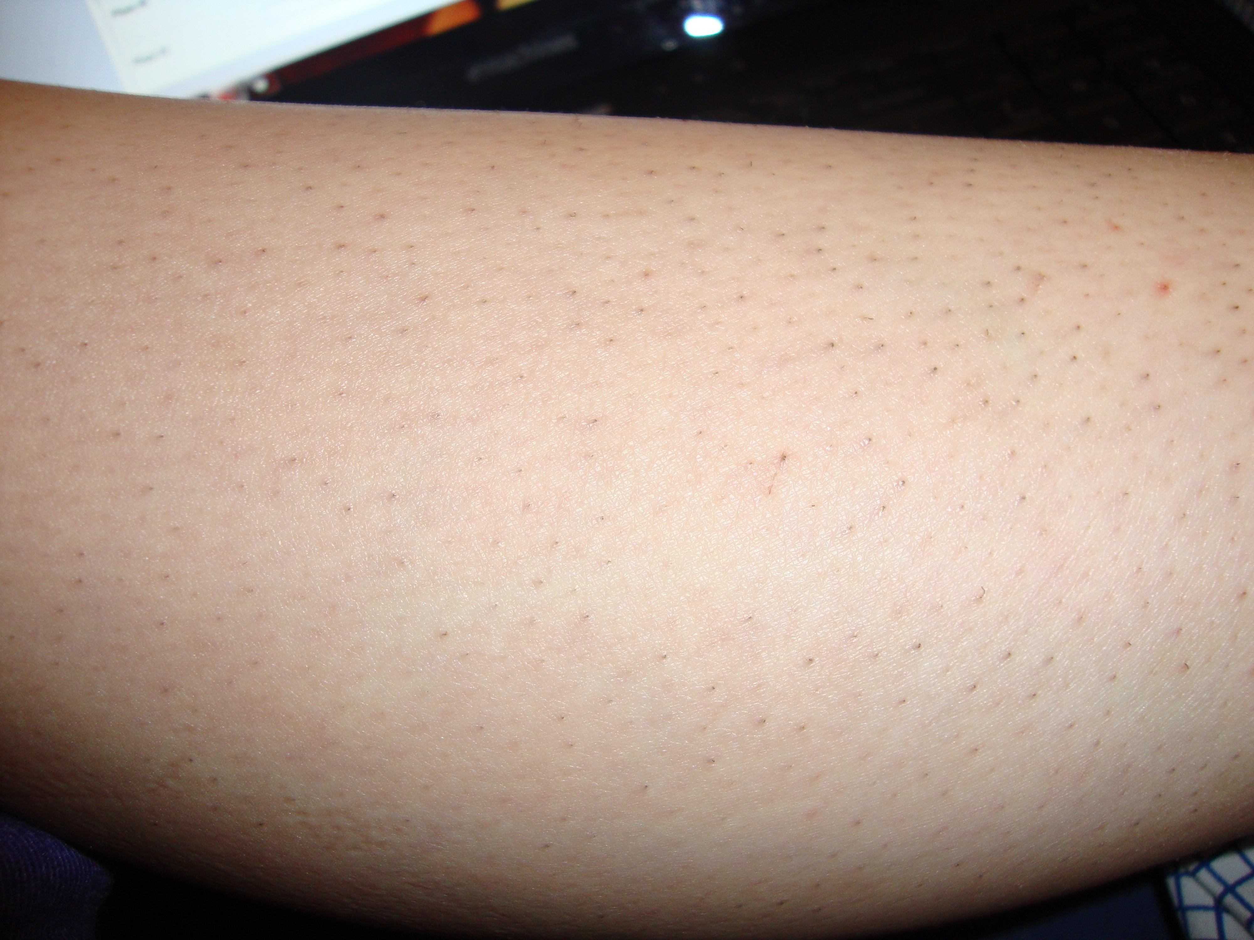 ingrown hair on inner thigh the gallery for gt ingrown