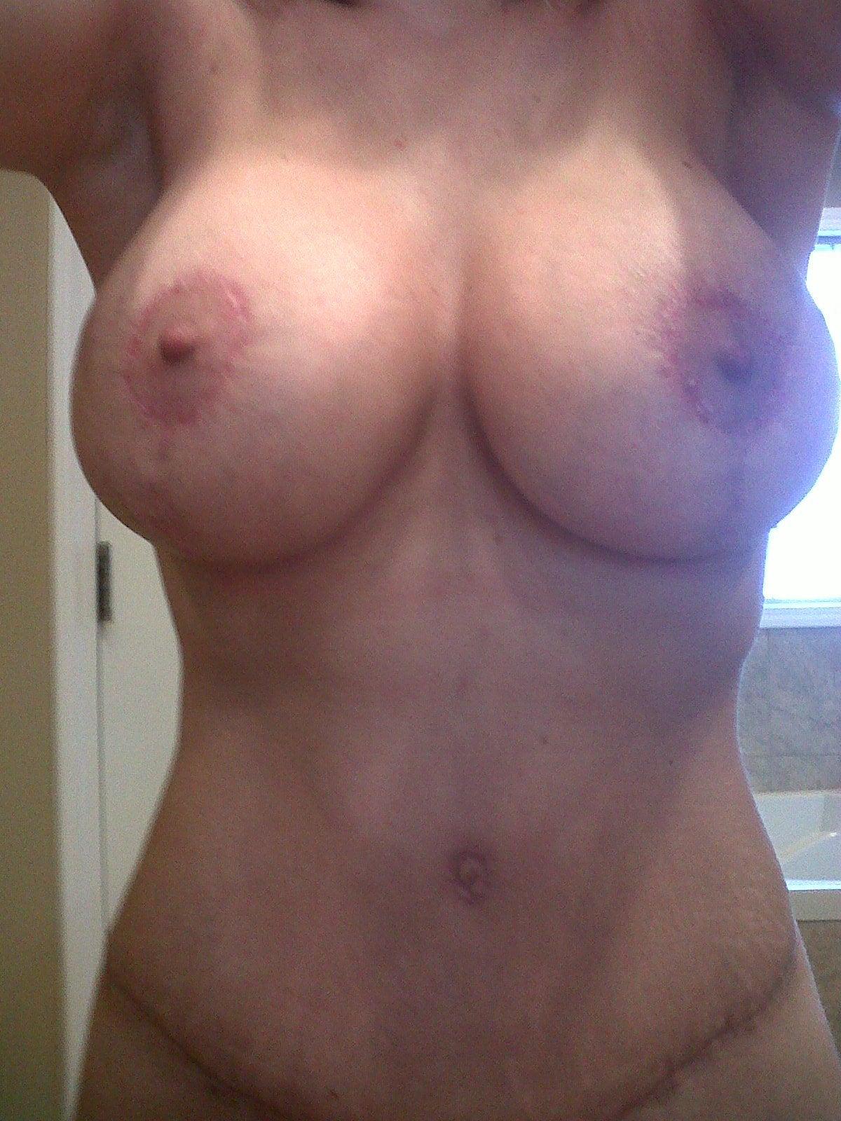 Before - San Diego Breast Augmentation - Dr Tom Pousti