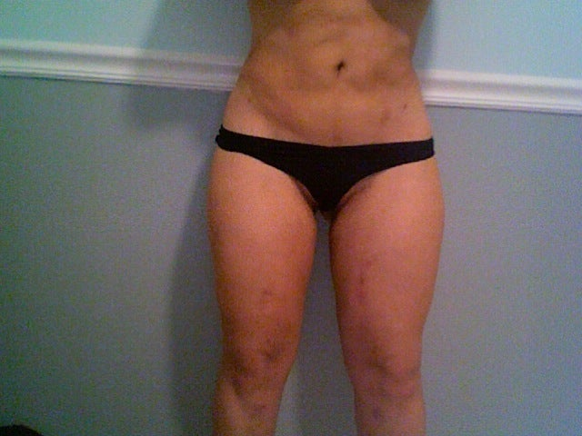 lump inner thigh female image search results