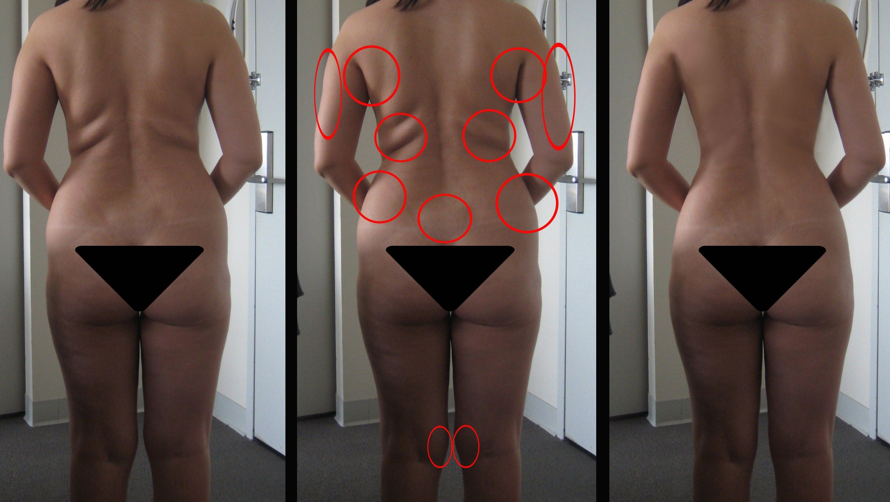 big hips pictures