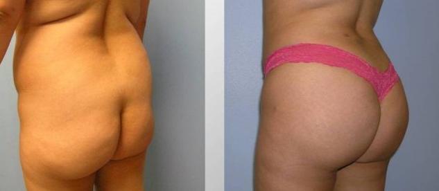 an amazing new butt from brazilian butt lift surgery