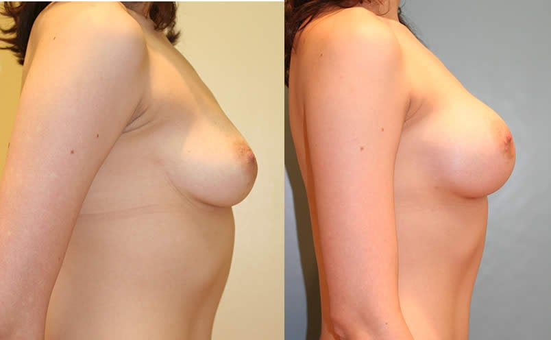 Before and After Breast Augmentation · Full size - Before and After