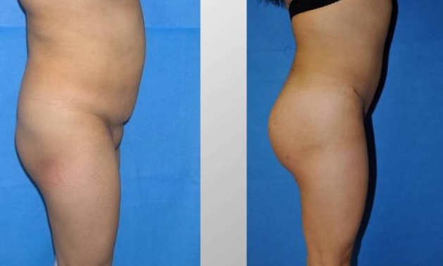 nicki minaj bum implants before and. Full size - Before and After
