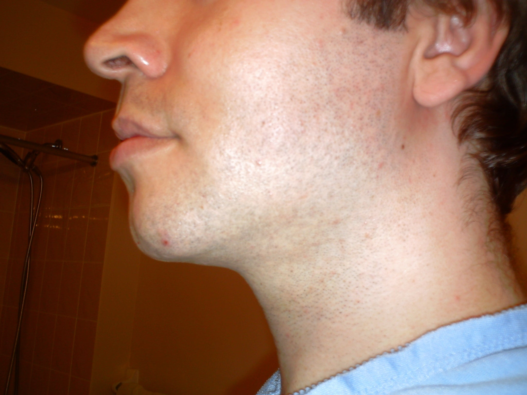 liposuction neck print