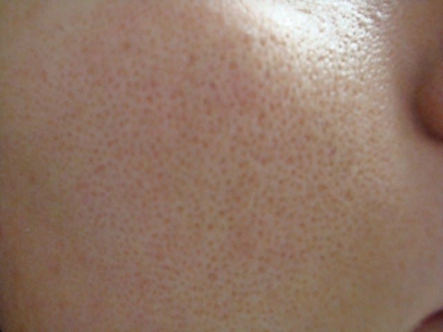 Blackheads On Nose. nose, and forehead from