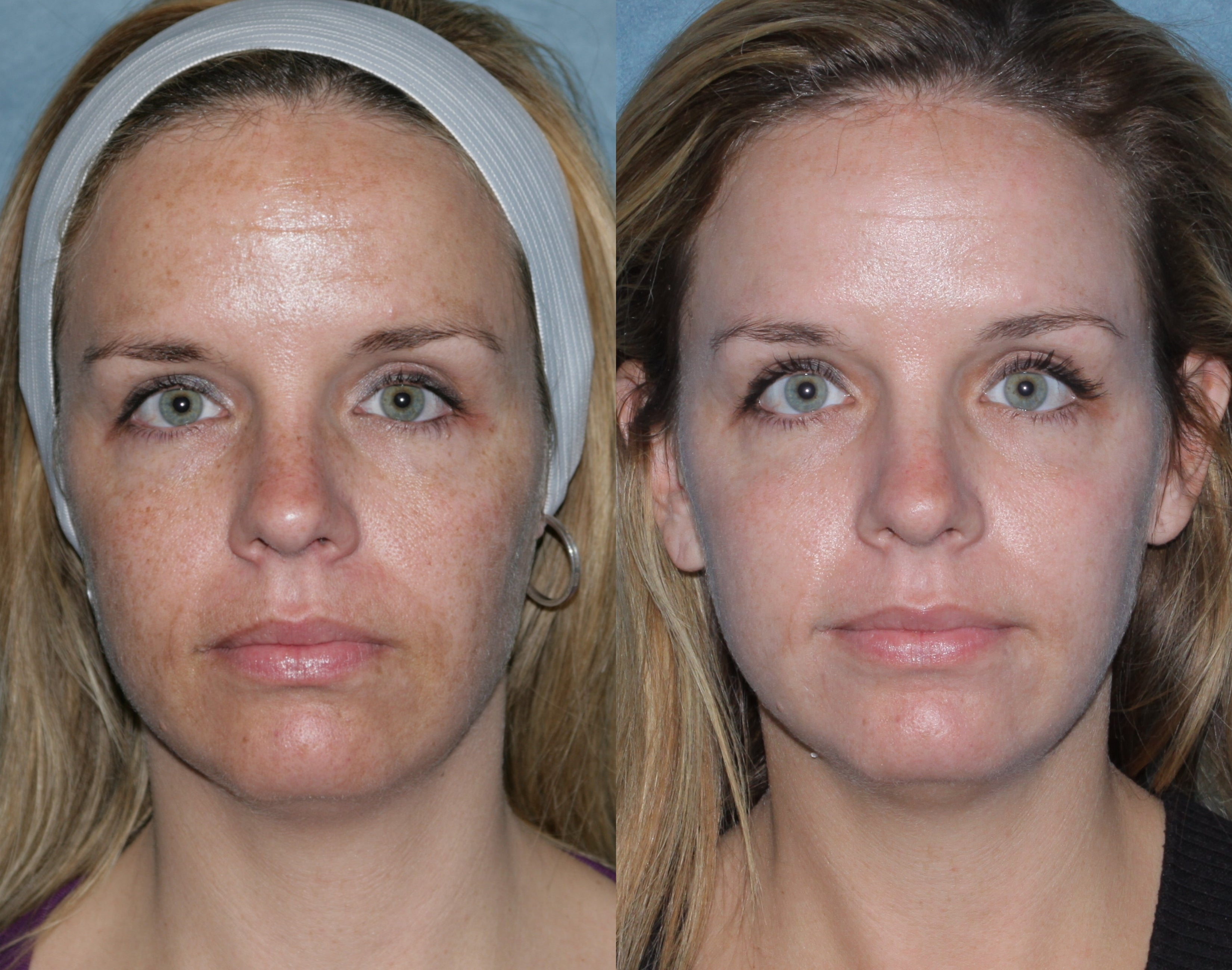 Age  Brown Spots Laser Treatment, Causes Of Age  Brown Spots New