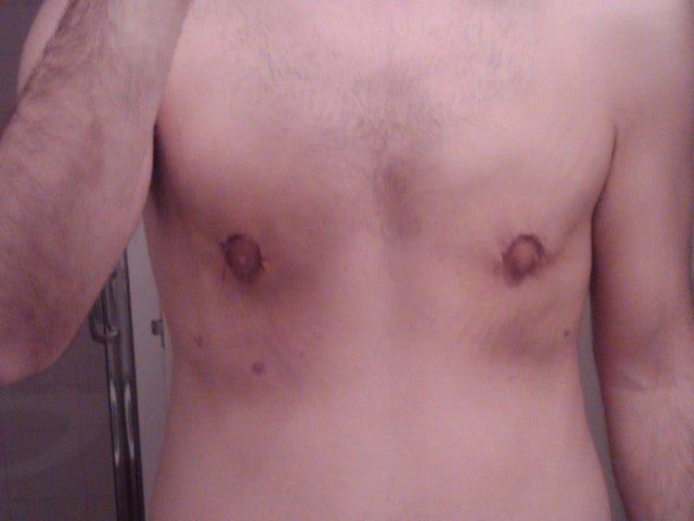 gynecomastia surgery before after. After Gynecomastia Surgery
