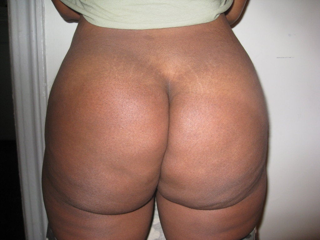 Is It Possible to Remove Injectable Butt Augmentation Substance ...