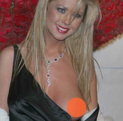 Tara Reid's breast slipped out at a photo shoot, revealing plastic surgery scars