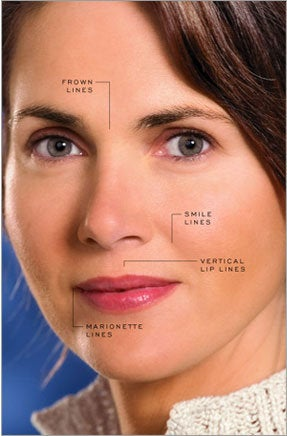 wrinkle fillers are longer lasting thanks to new technology