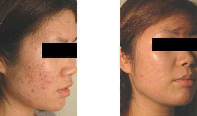 Acne Scars Laser