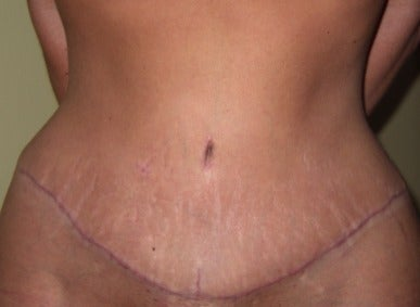 skin tightened with tummy tuck surgery